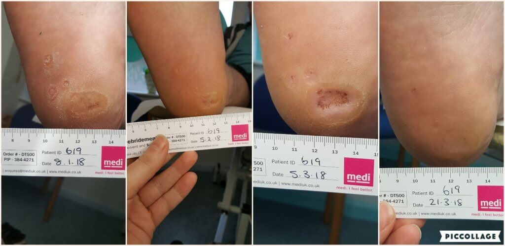Swift verruca treatment progress