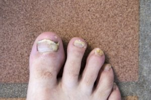 Fungal toenail infection