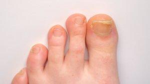 Thickened toenails